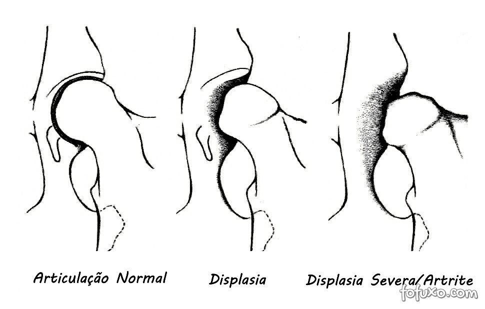 Displasia Coxofemoral mostrada em desenho.